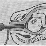 Амниоскопия