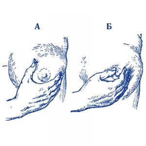 Выдавливание капли молозива из грудной железы: А - правильное; Б - неправильное (пальцы сдавливают сосок у основания, что препятствует выделению молозива)